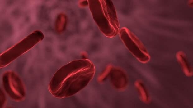Российский кардиолог объяснил причину образования атеросклероза