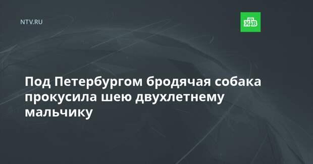 Под Петербургом бродячая собака прокусила шею двухлетнему мальчику