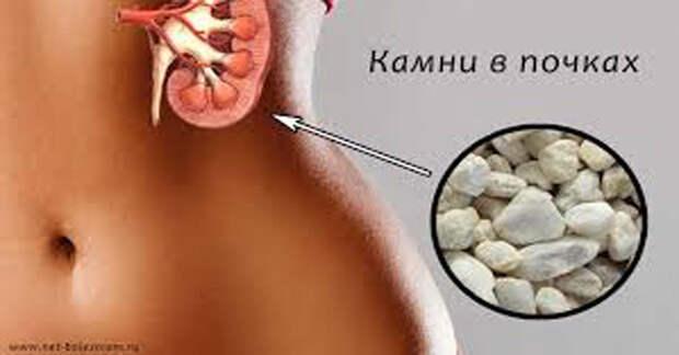 С этим лекарством камни в почках и желчном «растают». Врачи рекомендуют