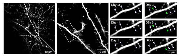 Псилоцибин увеличил количество дендритных шипиков и их размер в нейронах мышей с депрессией