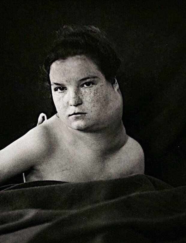 Портреты боли: поразительные фотографии пациентов из XIX века, страдающих от тяжких болезней
