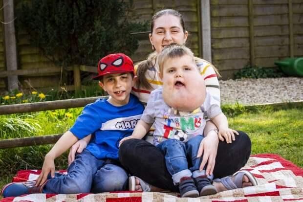 С верой в лучшее: 4‑летний мальчик с опухолью на лице не унывает, несмотря на болезнь