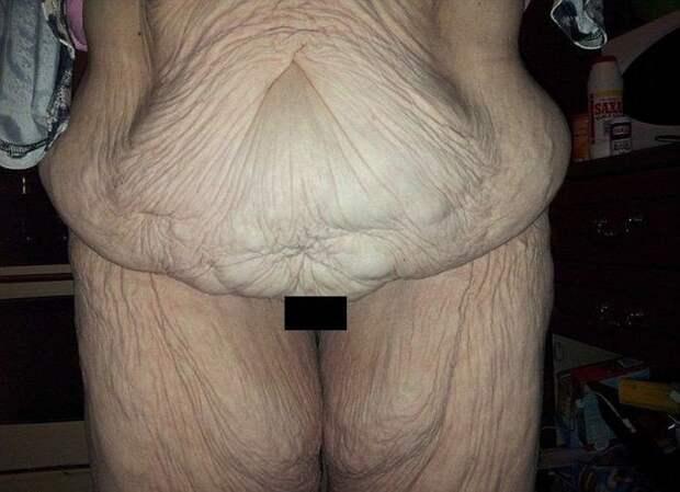 Минус 76 килограмм кожа, красота, невероятное, похудение, растяжки. шрамы, ужас