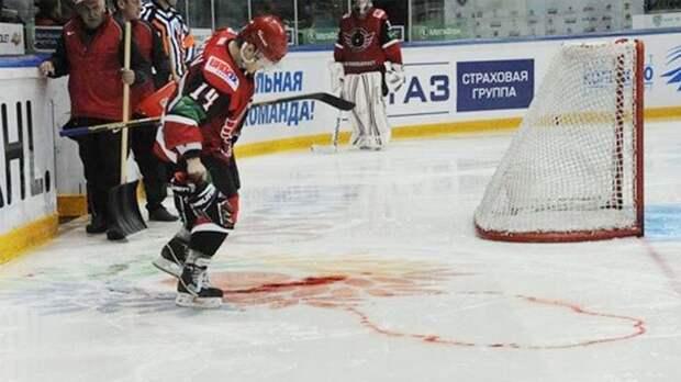 Жуткая травма русского хоккеиста. После удара коньком в сонную артерию он потерял пол-литра крови: видео