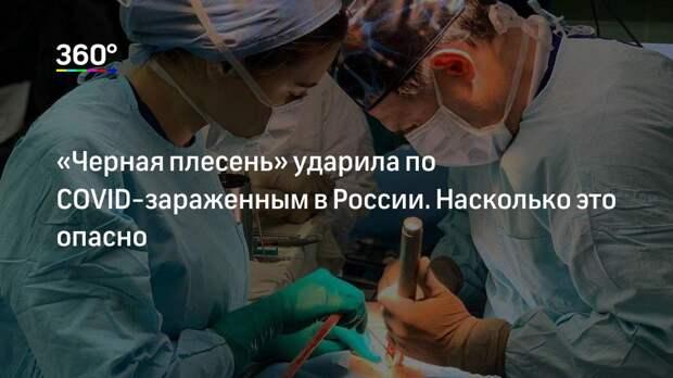 «Черная плесень» ударила по COVID-зараженным в России. Насколько это опасно