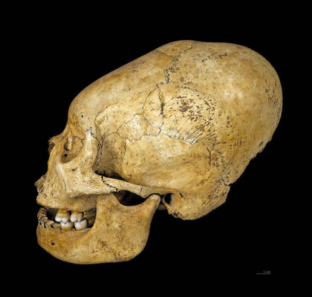 Модифицированный череп культуры прото-Наска. Перу, 200-100 гг. до н.э. | Фото: commons.wikimedia.org.