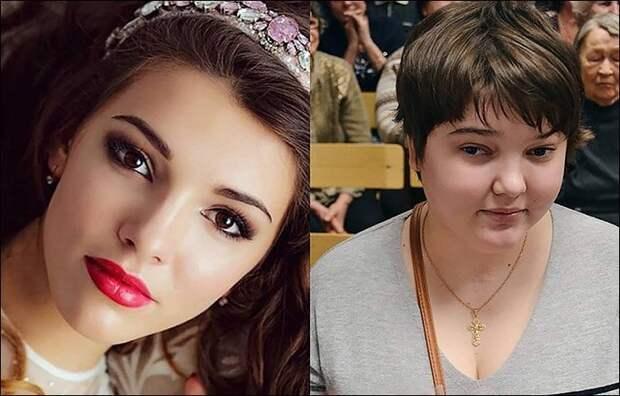 Её жизнь и внешность неузнаваемо изменились после ужасного ДТП авария, в мире, внешность, дтп, красота, люди