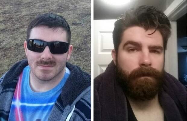 beards23