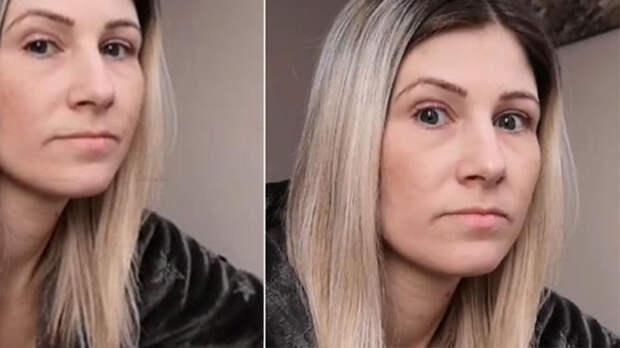 Женщина нашла у себя рак простаты по Google и шокировала врача