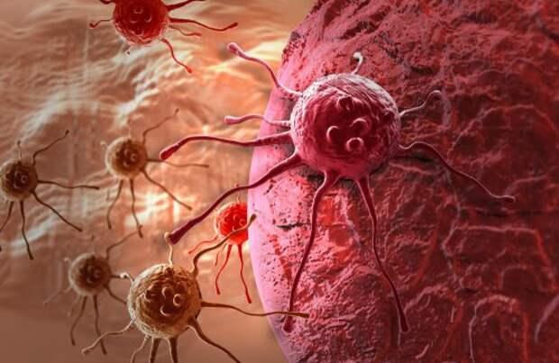 Клетки и рак груди