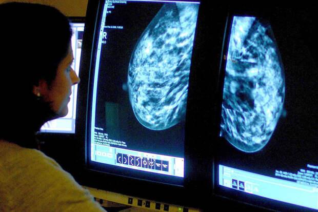 Врачи пояснили, почему после вакцинации от COVID могут обнаружить рак груди