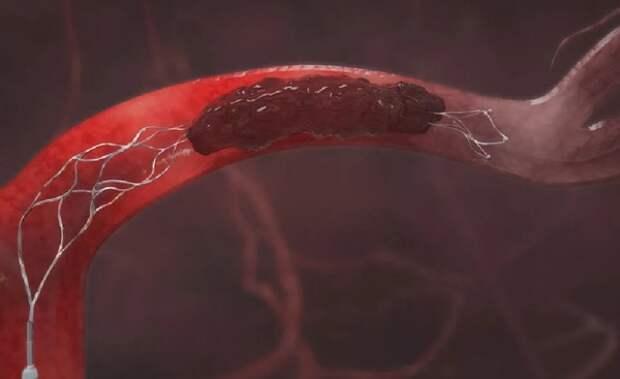 Медики назвали признаки появления тромбов в организме
