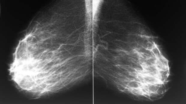 Найден способ борьбы с неизлечимым раком груди
