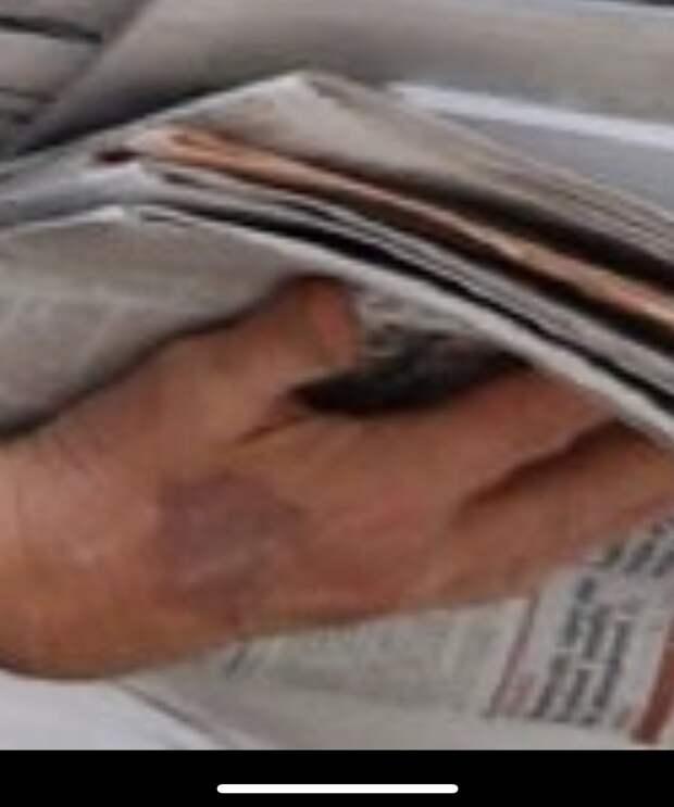 На руке Трампа виден след от катетера