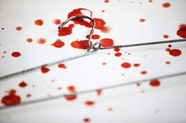 Ни зайки, ни лужайки: об отношении к абортам в России и СССР