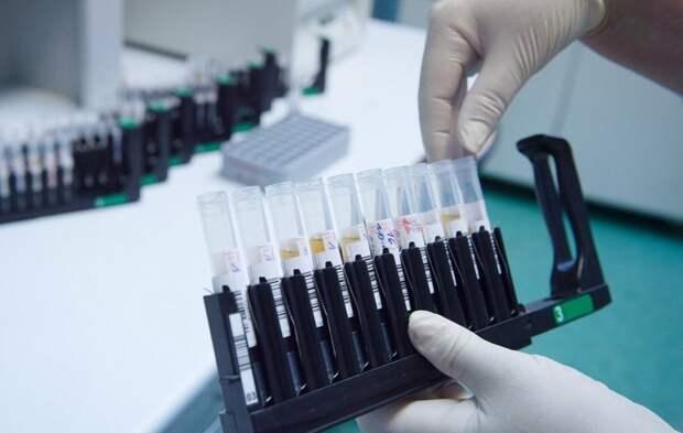 Свободная запись на проверку иммунитета к коронавирусу открылась в поликлинике на Соколе Фото: mos.ru