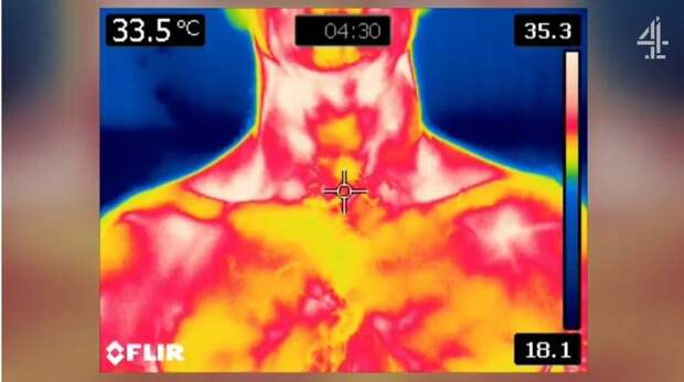 Холод— стройности товарищ: эксперты рассказали, как похудеть вовремя сна