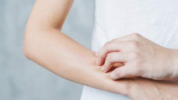 Доктор Комаровский назвал способ выявить рак кожи на ранних стадиях