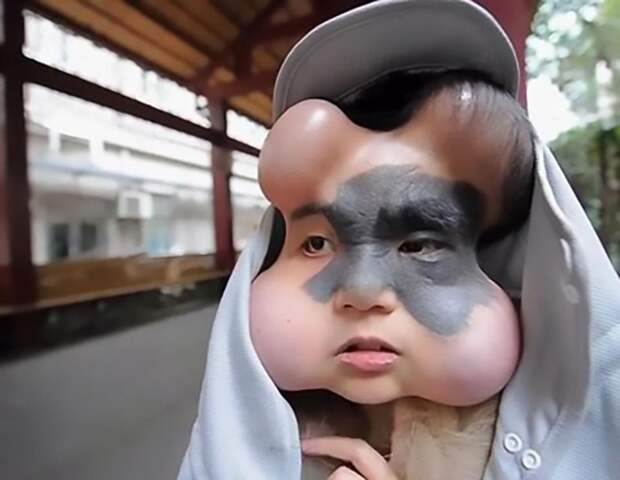 Девушке буквально накачали голову имплантами, чтобы удалить родимое пятно в мире, девушка, импланты, люди, родимое пятно