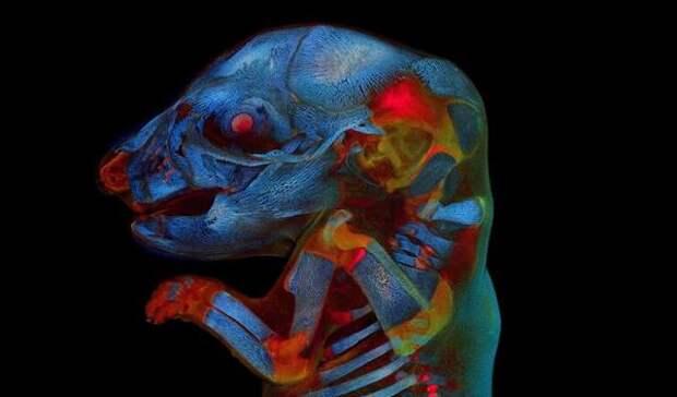 На ежегодном фотоконкурсе Olympus победил снимок крысиного эмбриона