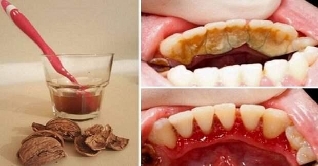 Удалить зубной камень в домашних условия, просто!