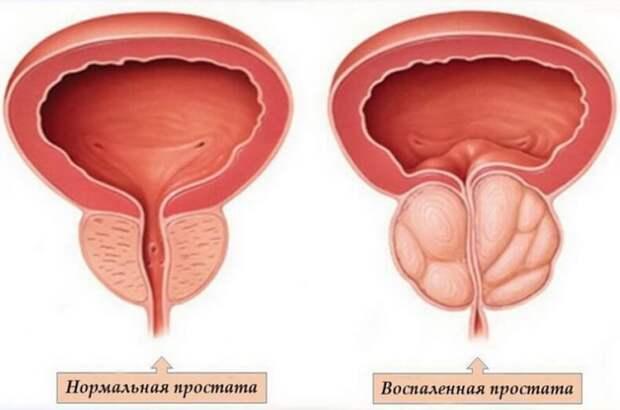Признаки урологических заболеваний