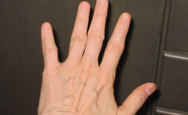14. Отсутствие ногтей генетика, кровосмешение, мутация, последствие