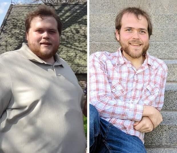 21 пример того, как сильно меняется лицо после потери веса