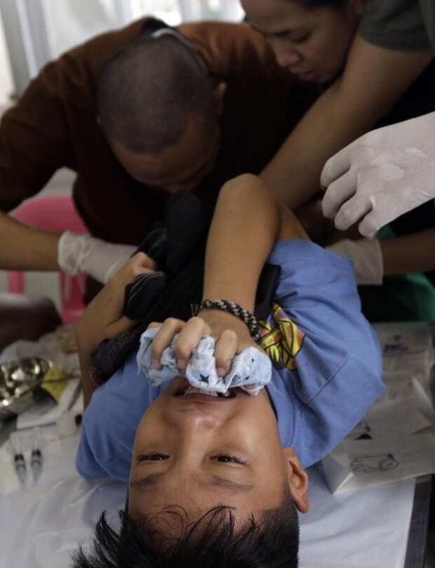 Филиппины. Традиционное обрезание