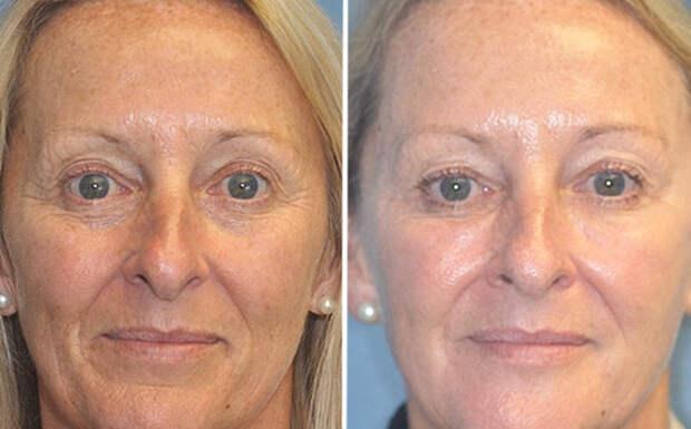 Только 15% женщин нужен увлажняющий крем: сенсационное заявление дерматологов