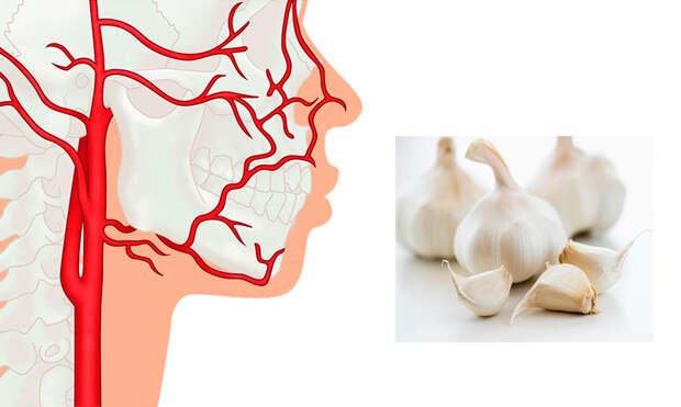 Чистка сосудов дома: от атеросклероза, головных болей и других заболеваний