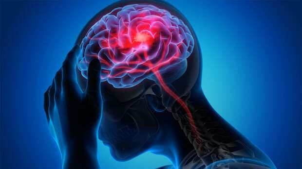 Что делать, если болит голова. Причины головной боли и поводы обследоваться у врача
