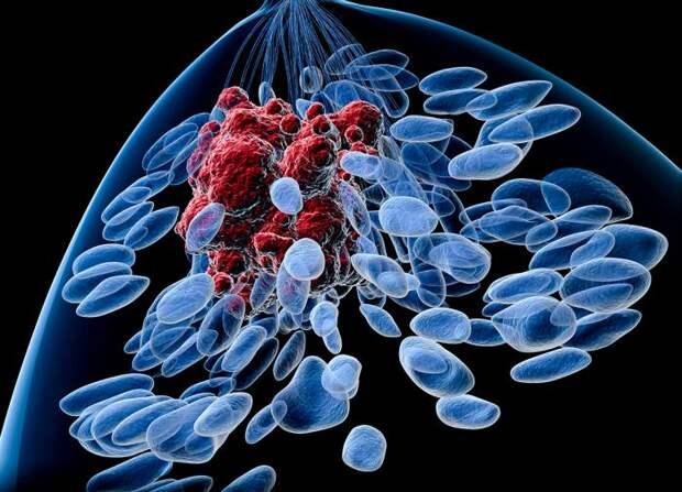 Метастазы. Рак груди