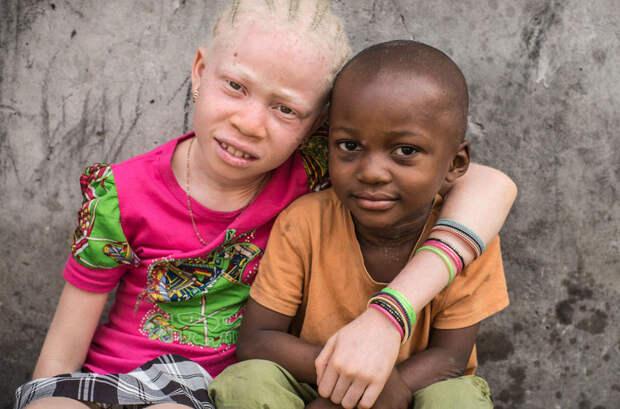 23 драматических снимков из жизни альбиносов