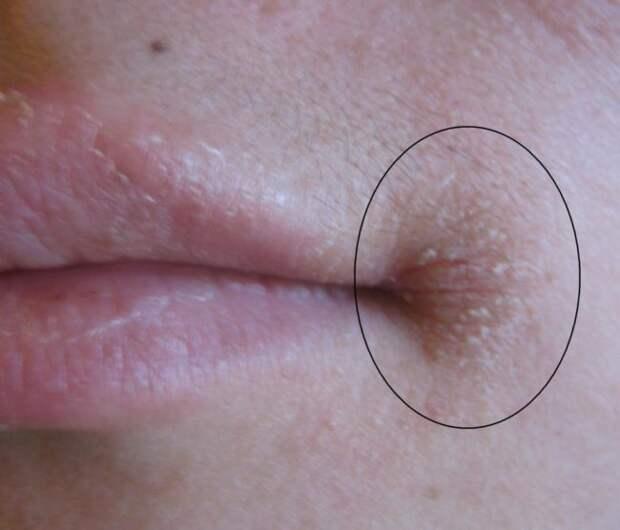 Заеды на губах — причины появления, чего не хватает