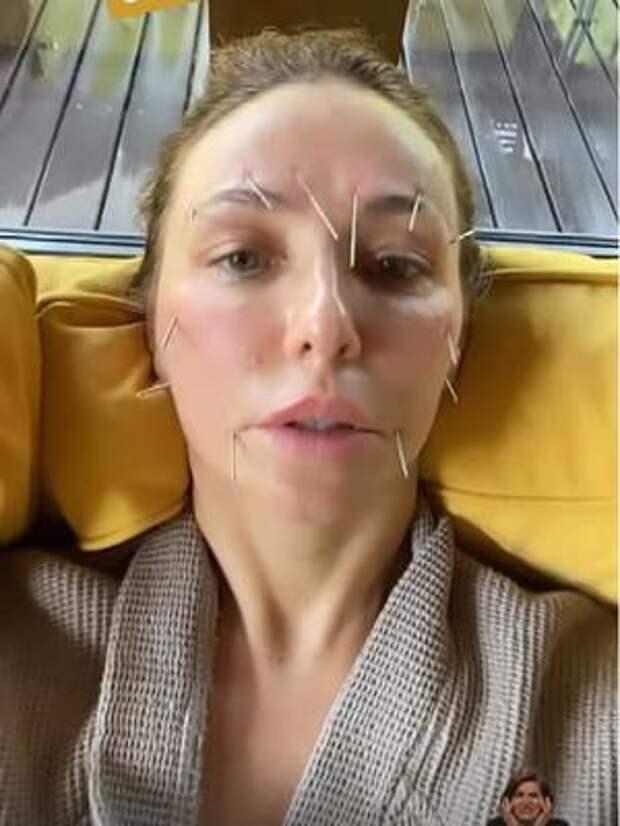 Даже выглядит больно! Татьяна Навка показала жуткую бьюти-процедуру