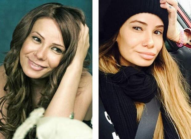 10 российских красавиц доипосле пластики