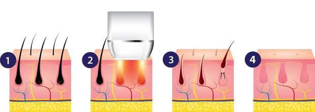 Лазерная эпиляция: сколько стоит, эффективна ли, какие противопоказания