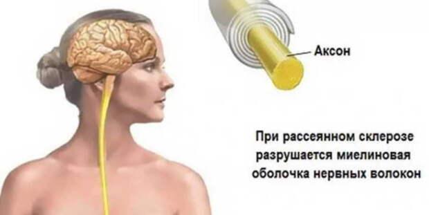 """Народные средства для улучшения мозгового кровообращения: скажи """"нет"""" слабоумию, рассеянности и немощи!"""