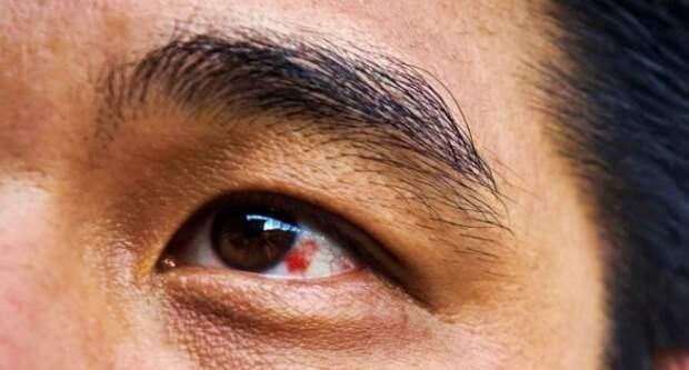 Что делать, если появилось красное пятно на глазу