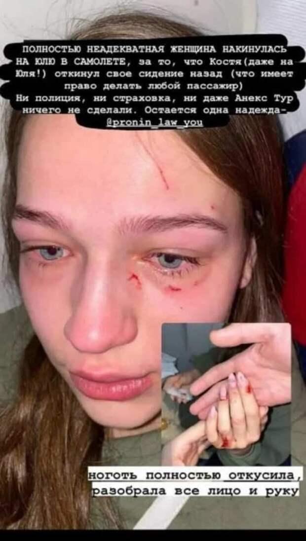 Украинке в самолёте расцарапали лицо и откусили ноготь (ФОТО)