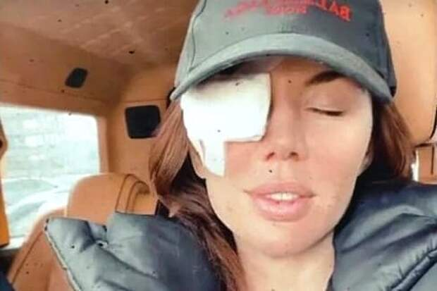 Анна Седокова перенесла экстренную операцию