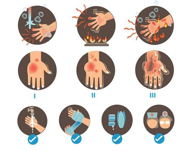 Что делать при ожоге. Первая помощь и лечение в домашних условиях