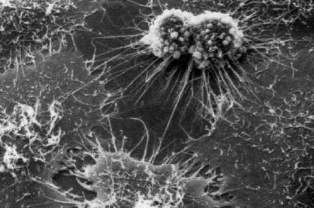 Наномоторы в живой клетке — к чему приведет эксперимент по внедрению механизмов в организм