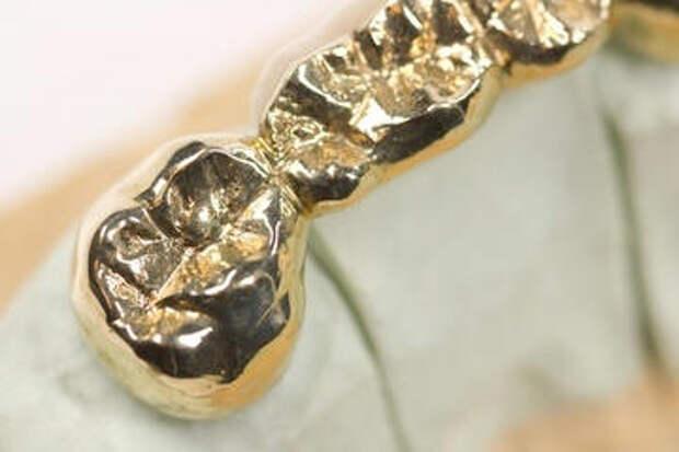 Кельты носили блестящие зубные импланты