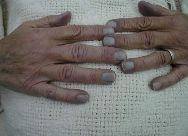Кардиологи рассказали, как определить смертельное состояние по цвету ногтей